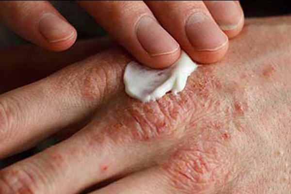 دارویی جدید برای درمان اگزمای پوست